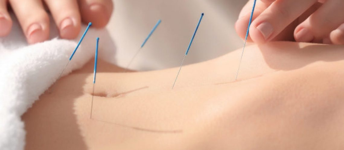 Beneficios de las terapias naturales, Acupuntura y Moxibustion.